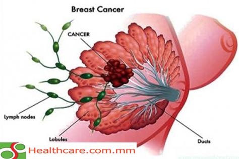 ရင်သား ကင်ဆာ သိကောင်းစရာ
